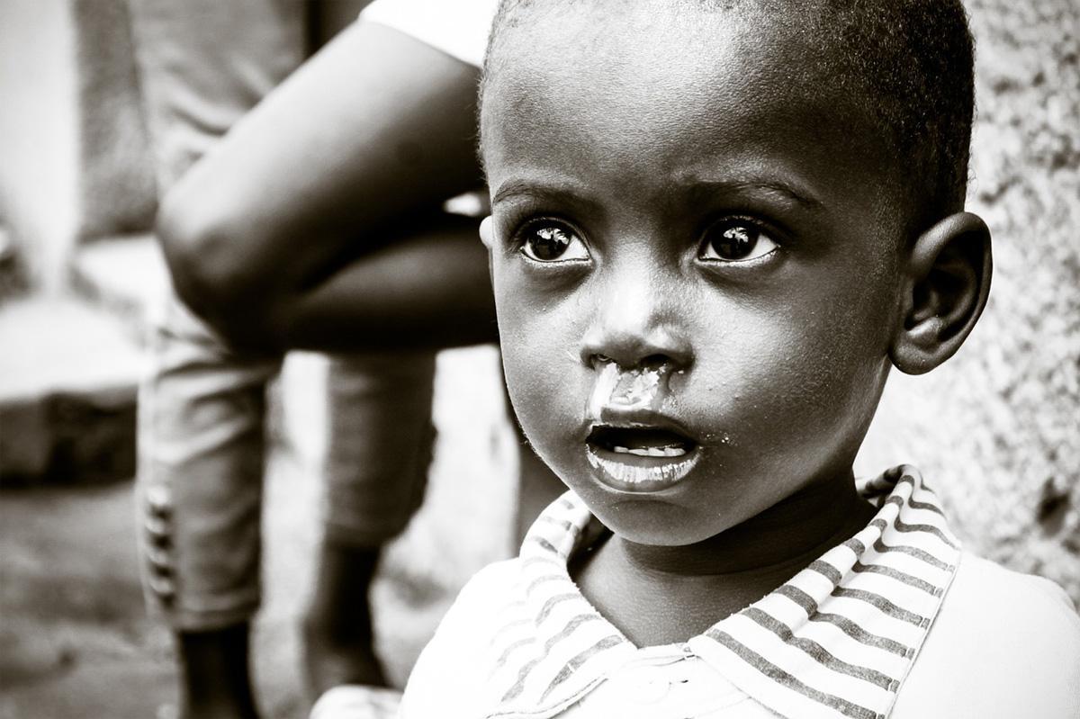 Child-Malnutrition